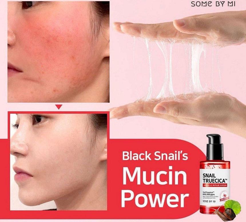 Tinh chất Some By Mi Snail Truecica Miracle Repair Serum - Đánh bay sẹo mụn, mụn và vết thâm do mụn...